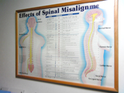Effects of Spinal Misalignments